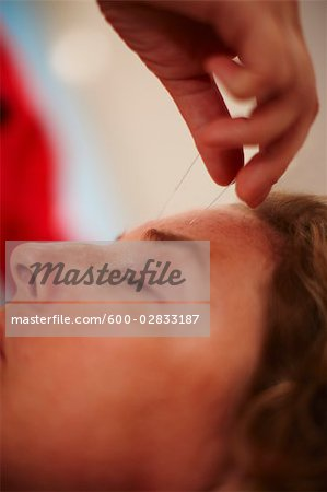 Woman Receiving Acupuncture Stock Photo - Premium Royalty-Free, Image code: 600-02833187