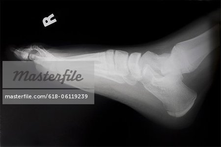 X-ray of the right foot of a woman Stock Photo - Premium Royalty-Free, Image code: 618-06119239