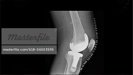 Senior male knee replacement postop Stock Photo - Premium Royalty-Free, Image code: 618-06503595