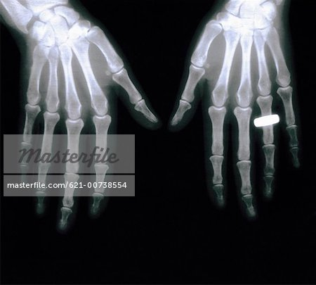 X ray of Hands with Wedding Band Stock Photo - Premium Royalty-Free, Image code: 621-00738554