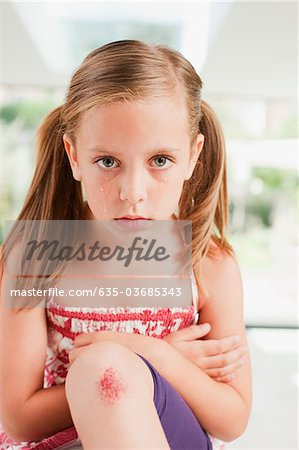 Crying girl with scraped knee Stock Photo - Premium Royalty-Free, Image code: 635-03685343