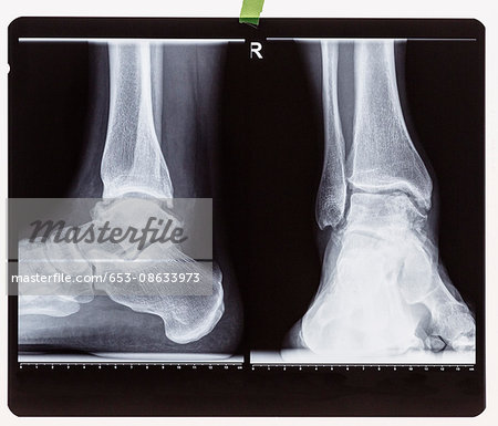 X-ray of the right foot ankle joint Stock Photo - Premium Royalty-Free, Image code: 653-08633973