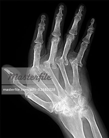 Arthritic hand. X-ray of the hand of a patient with severe rheumatoid arthritis in all of their fingers. The thumb is at left. This is polyarthritis, which means that more than five joints are affected. Rheumatoid arthritis is an autoimmune disorder, where the immune system attacks the body's own tissues, causing progressive joint and cartilage destruction. As the cartilage is worn away, new bone Stock Photo - Premium Royalty-Free, Image code: 679-02682328