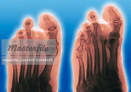 Amputated toe. Coloured frontal (left) and oblique (right) X-rays of a foot of a diabetic, showing an amputated second toe. Stock Photo - Premium Royalty-Free, Image code: 679-02684335