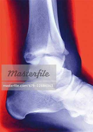 Fractured ankle. Coloured profile X-ray of a distal fibula fracture (upper centre). The fibula is the smaller leg bone running down from top centre. The larger bone is the tibia. The ankle is the joint at which these bones meet the bones of the foot (lower right). Stock Photo - Premium Royalty-Free, Image code: 679-02684363