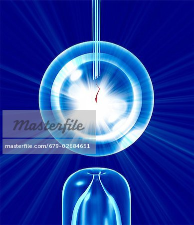 In vitro fertilisation (IVF), conceptual computer artwork. Stock Photo - Premium Royalty-Free, Image code: 679-02684651