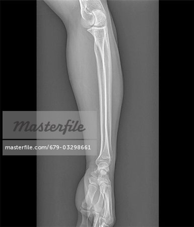 Normal elbow and wrist joints, frontal X-ray. Stock Photo - Premium Royalty-Free, Image code: 679-03298661
