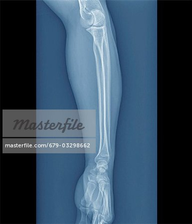 Normal elbow and wrist joints, coloured frontal X-ray. Stock Photo - Premium Royalty-Free, Image code: 679-03298662