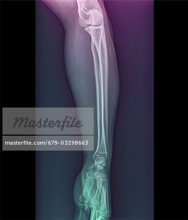 Normal elbow and wrist joints, coloured frontal X-ray. Stock Photo - Premium Royalty-Free, Image code: 679-03298663