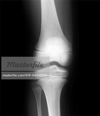 Normal child's knee, X-ray Stock Photo - Premium Royalty-Free, Image code: 679-04249938