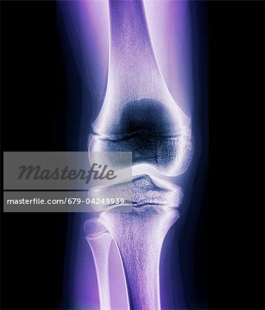 Normal child's knee, X-ray Stock Photo - Premium Royalty-Free, Image code: 679-04249939