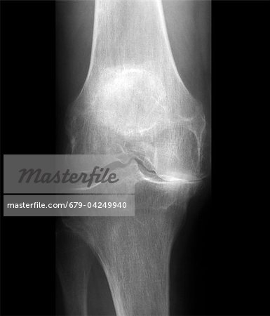 Arthritis of the knee, X-ray Stock Photo - Premium Royalty-Free, Image code: 679-04249940