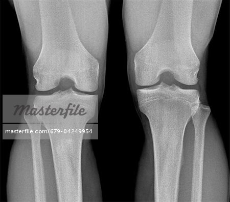 Normal knees, X-ray Stock Photo - Premium Royalty-Free, Image code: 679-04249954