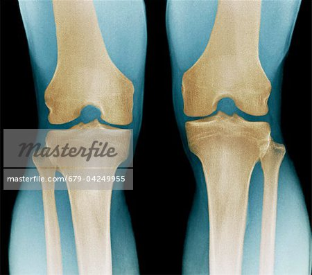 Normal knees, X-ray Stock Photo - Premium Royalty-Free, Image code: 679-04249955