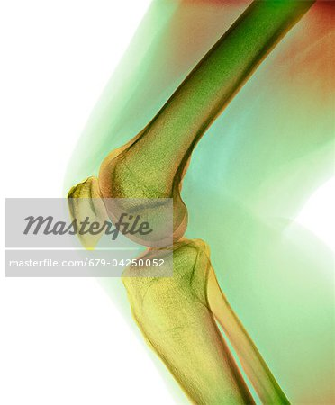 Normal knee, X-ray Stock Photo - Premium Royalty-Free, Image code: 679-04250052