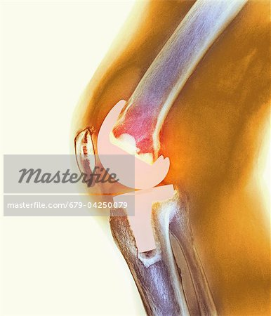 Knee replacement, X-ray Stock Photo - Premium Royalty-Free, Image code: 679-04250079