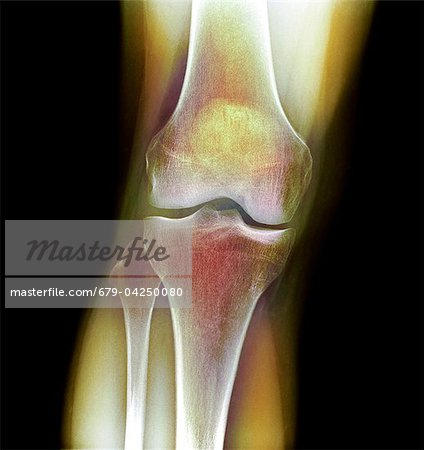 Normal knee, X-ray Stock Photo - Premium Royalty-Free, Image code: 679-04250080