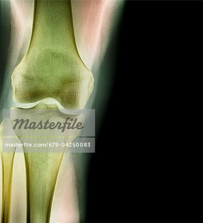 Normal knee, X-ray Stock Photo - Premium Royalty-Free, Image code: 679-04250083