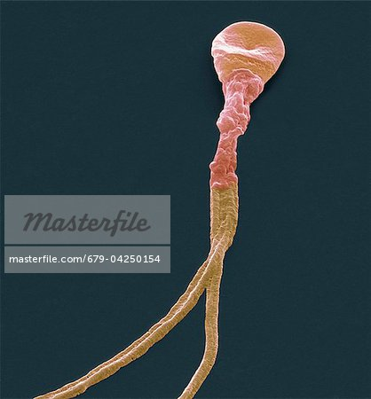 Deformed sperm cell, SEM Stock Photo - Premium Royalty-Free, Image code: 679-04250154