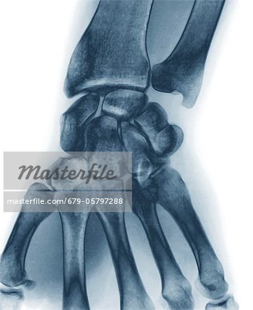 Normal wrist, X-ray Stock Photo - Premium Royalty-Free, Image code: 679-05797288