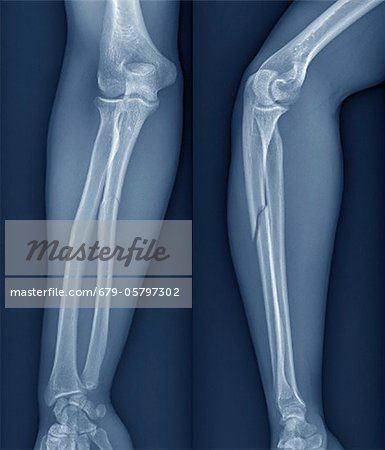 Broken arm, X-ray Stock Photo - Premium Royalty-Free, Image code: 679-05797302