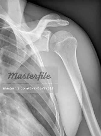 Normal shoulder, X-ray