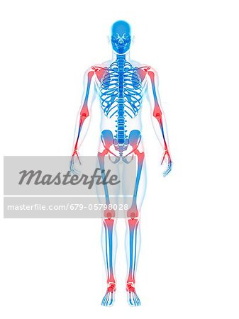 Joint pain, conceptual artwork Stock Photo - Premium Royalty-Free, Image code: 679-05798028
