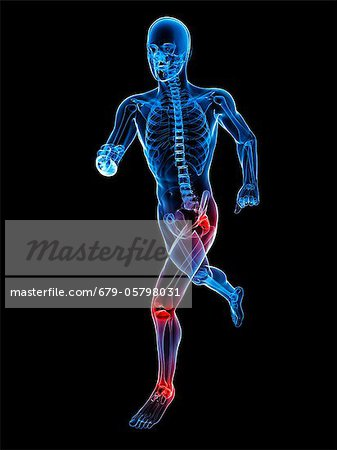 Joint pain, conceptual artwork Stock Photo - Premium Royalty-Free, Image code: 679-05798031