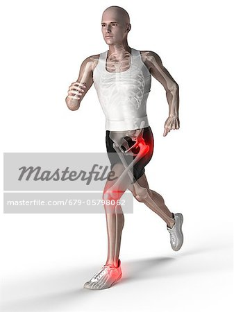 Joint pain, conceptual artwork Stock Photo - Premium Royalty-Free, Image code: 679-05798062