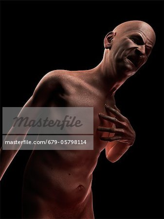 Heart attack, conceptual artwork Stock Photo - Premium Royalty-Free, Image code: 679-05798114