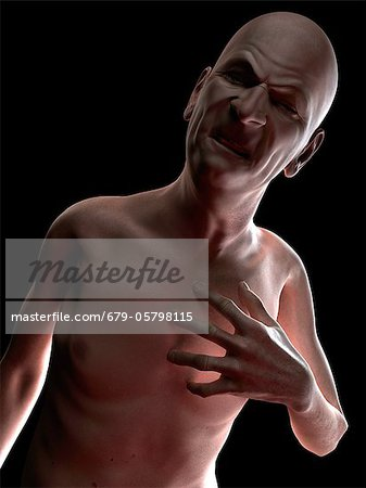 Heart attack, conceptual artwork Stock Photo - Premium Royalty-Free, Image code: 679-05798115