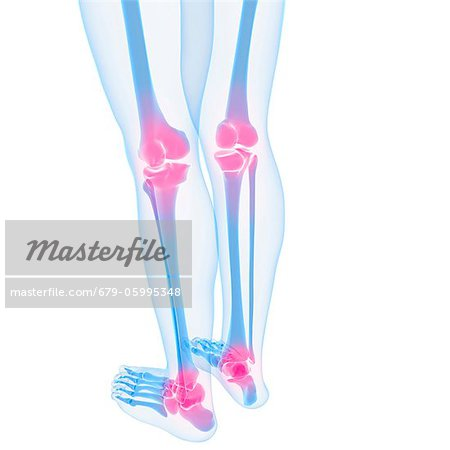 Joint pain, conceptual computer artwork. Stock Photo - Premium Royalty-Free, Image code: 679-05995348