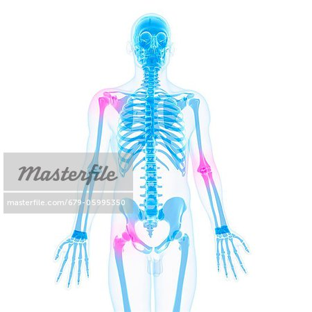 Joint pain, conceptual computer artwork. Stock Photo - Premium Royalty-Free, Image code: 679-05995350