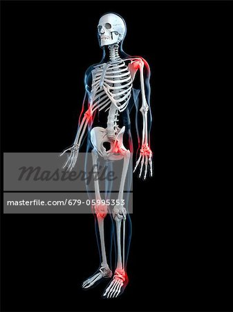 Joint pain, conceptual computer artwork. Stock Photo - Premium Royalty-Free, Image code: 679-05995353