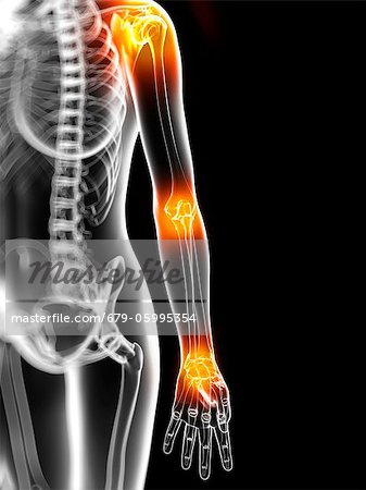 Joint pain, conceptual computer artwork. Stock Photo - Premium Royalty-Free, Image code: 679-05995354