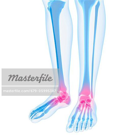Ankle pain, conceptual computer artwork. Stock Photo - Premium Royalty-Free, Image code: 679-05995387