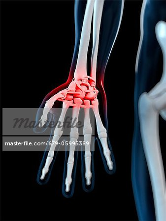 Wrist pain, conceptual computer artwork. Stock Photo - Premium Royalty-Free, Image code: 679-05995389