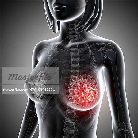 Breast cancer, computer artwork. Stock Photo - Premium Royalty-Free, Image code: 679-06712201