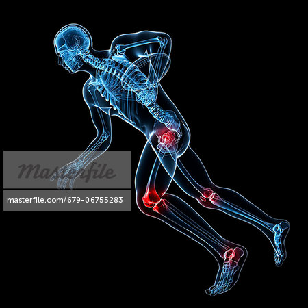 Sports injuries, conceptual artwork Stock Photo - Premium Royalty-Free, Image code: 679-06755283