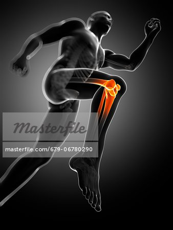 Knee pain, conceptual computer artwork. Stock Photo - Premium Royalty-Free, Image code: 679-06780290