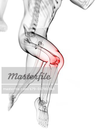 Knee pain, conceptual computer artwork. Stock Photo - Premium Royalty-Free, Image code: 679-06780340