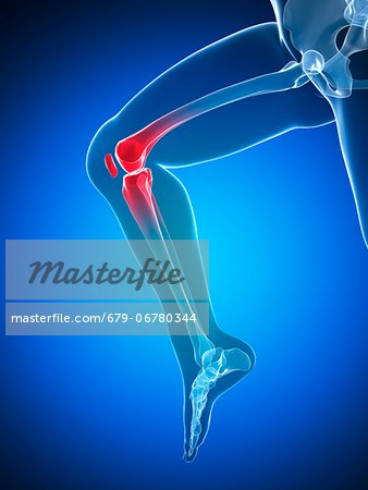 Knee pain, conceptual computer artwork. Stock Photo - Premium Royalty-Free, Image code: 679-06780344