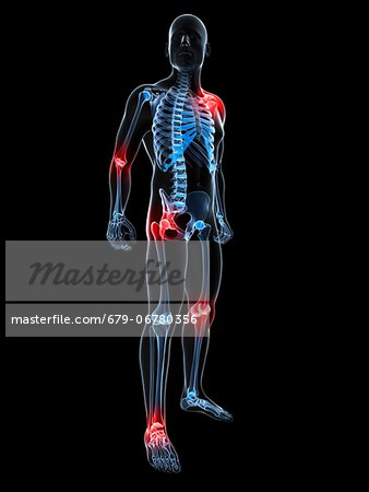 Joint pain, conceptual computer artwork. Stock Photo - Premium Royalty-Free, Image code: 679-06780356