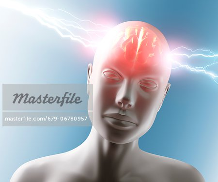 Headache, conceptual computer artwork. Stock Photo - Premium Royalty-Free, Image code: 679-06780957