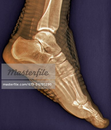 Healthy ankle joint. Coloured profile X-ray of the left ankle of a 21 year old patient. Strapping around the ankle is visible on this X-ray. Stock Photo - Premium Royalty-Free, Image code: 679-06781290