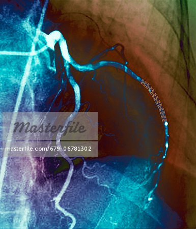 Coronary stent. Coloured angiogram (blood vessel X-ray) of the coronary arteries of a 52 year old patient. The artery at right has had a stent placed in it to treat a blockage. Stock Photo - Premium Royalty-Free, Image code: 679-06781302