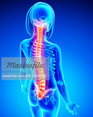 Spine pain, computer artwork. Stock Photo - Premium Royalty-Free, Image code: 679-07153835