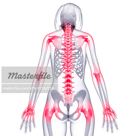 Joint pain, computer artwork. Stock Photo - Premium Royalty-Free, Image code: 679-07162318