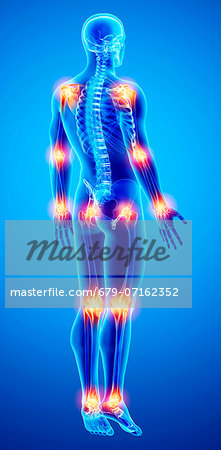 Joint pain, computer artwork. Stock Photo - Premium Royalty-Free, Image code: 679-07162352