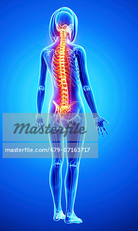 Back pain, computer artwork. Stock Photo - Premium Royalty-Free, Image code: 679-07163717